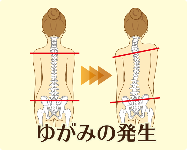 疲労の蓄積により内臓が疲労することで、内臓-体壁反射が生じて体に歪みが発生し、姿勢が崩れます。