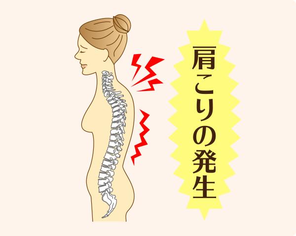 姿勢が崩れて猫背になることで、首や肩周りの筋肉が引っ張られて緊張し、肩こりが発生します。
