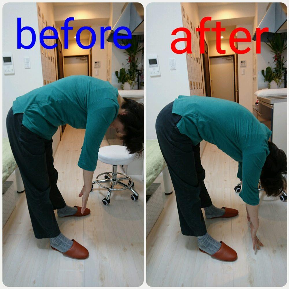 1年間整骨院に通っても改善しなかった坐骨神経痛の改善事例 大分駅前整体院