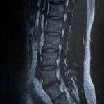 ヘルニアの手術をしても良くならなかった腰痛の改善例「大分駅前整体院」
